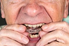 Senior man putting a night guard onto crooked teeth. Senior caucasian man putting plastic mouth or night guard onto crooked stained teeth stock photo