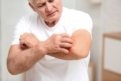 Senior man scratching forearm indoors. Allergy symptom. Senior man scratching forearm indoors, closeup. Allergy symptom royalty free stock images