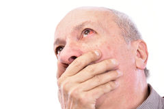 Senior shocked man with irritated red bloodshot eye Royalty Free Stock Photos