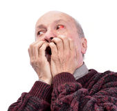Senior shocked man with irritated red bloodshot eye Royalty Free Stock Images