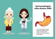Gastro-Esophageal Reflux Disease GERD. Senior suffering from stomach painful or Acid Reflux or Heartburn, Gas, Bloating, Belching and flatulence. Caused by vector illustration