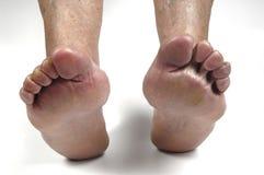 Senior woman foot Stock Image
