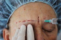 Senior Woman Getting Botox Injection Stock Photos