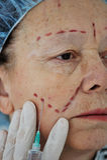 Senior woman getting botox injection stock photo
