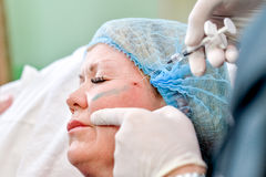 Senior woman getting skin care injection Stock Photography