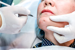 Senior woman getting skin care injection Royalty Free Stock Images