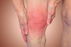 Senior woman holding the knee with pain. On gray Royalty Free Stock Photos