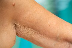 Senior woman raising her wrinkled inside part of the arm, Wrinkled armpit, Mole, Blue swimming pool background, Body concept. Close up royalty free stock photo