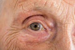 Free Senior Woman`s Eye Royalty Free Stock Images - 88095989
