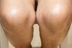 Senior woman`s knees, Sitting on chair, Body concept royalty free stock photos