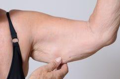 Señora mayor que exhibe la piel floja en su brazo Foto de archivo libre de regalías