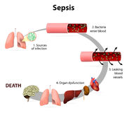 Sepsis Stock Photography