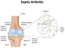 Septic Arthritis Royalty Free Stock Image
