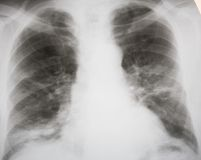 Septic pneumonia