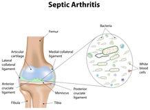 Septische Arthritis vektor abbildung