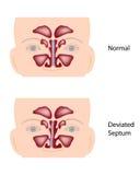 Septo nasal afastado Imagens de Stock