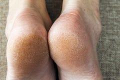 Seque la piel agrietada de los pies de la mujer en cama Tratamiento del pie imagen de archivo libre de regalías
