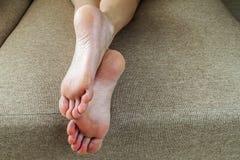 Seque pele rachada dos pés da mulher na cama Tratamento do pé foto de stock