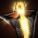 Ser humano com varredura da radiografia da dor de cabeça Imagem de Stock Royalty Free