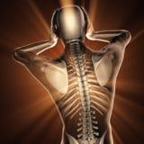 Ser humano com varredura da radiografia da dor de cabeça Fotos de Stock