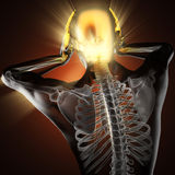 Ser humano com varredura da radiografia da dor de cabeça Imagens de Stock Royalty Free