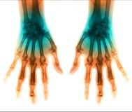 Ser humano de la exploración de la radiografía para la mano Imagenes de archivo