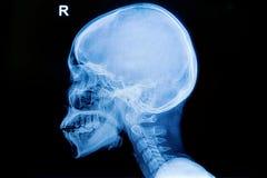 Ser humano de la radiografía del cráneo y de la espina dorsal cervical Foto de archivo libre de regalías