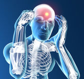 Ser humano de la radiografía con dolor de cabeza Fotos de archivo libres de regalías
