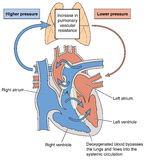 Serce defekty powoduje Eisenmenger syndrom Fotografia Stock