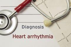 Sercowa diagnoza Kierowy Arrhythmia Na doktorskim miejscu pracy jest czerwony stetoskop, drukujący na papieru ECG linii i pióra z Zdjęcia Stock