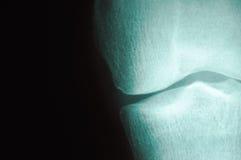 Serie 4 de la radiografía Fotografía de archivo