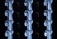 Serie av bilder från en datoriserad tomography av halsen Arkivfoto