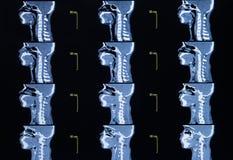 Serie de imágenes de una tomografía automatizada del cuello Foto de archivo