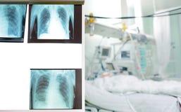 Serie promieniowanie rentgenowskie wizerunki klatka piersiowa odbija cierpliwego ` s kantują obrazy royalty free