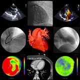 A series of cardiac imaging with different techniques Royalty Free Stock Photography