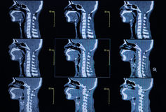 Series of images from a computerized tomography of neck (cervica Stock Image