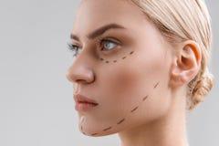 Serinmädchen ist zur Gesichtschirurgie bereit lizenzfreie stockfotografie