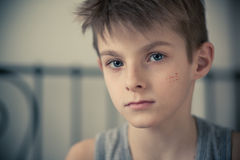 Serious Boy with Face Scars Staring at the Camera Stock Images