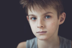 Serious Face with Scars of Young Boy Against Black stock image