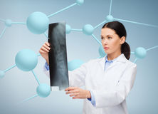 Serious female doctor looking at x-ray Stock Photography