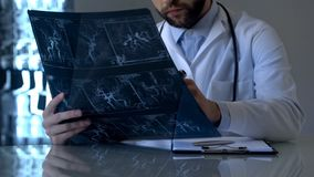 Serious neurosurgeon looking at cerebral vessels x-ray, health care diagnostics. Stock photo royalty free stock images