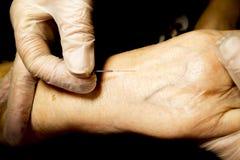 Sesyjne akupunktur ręki Obrazy Stock