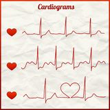 Set of cardiograms Royalty Free Stock Image