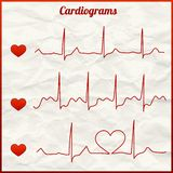 Set of cardiograms Royalty Free Stock Photos