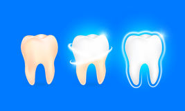 Set of  clean and dirty tooth on blue background. Royalty Free Stock Photo