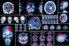 Set , Collection of brain disease ( Cerebral infarction , Hemorrhagic stroke , Brain tumor , Disc herniation with spinal cord comp. Ression ,etc)( CT scan , MRI Stock Images