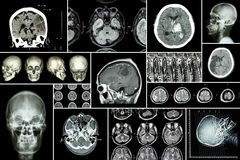 Set , Collection of brain disease ( Cerebral infarction , Hemorrhagic stroke , Brain tumor , Disc herniation with spinal cord comp. Ression ,etc)( CT scan , MRI Royalty Free Stock Images