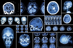 Set , Collection of brain disease ( Cerebral infarction , Hemorrhagic stroke , Brain tumor , Disc herniation with spinal cord comp Royalty Free Stock Images
