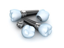 Set of dental implants Stock Image