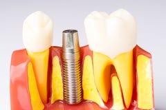 Set dentysty ` s wyposażenia narzędzia, denture seansu wszczep Zdjęcie Royalty Free